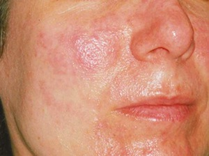 Comme purifier les pores et les points noirs sur la personne